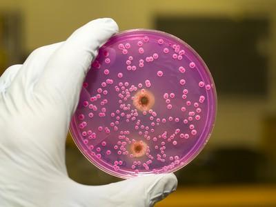 Bakterien Hygiene Wassertest